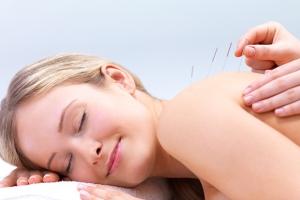 acupunctuur-praktijk-antwerpen-behandeling
