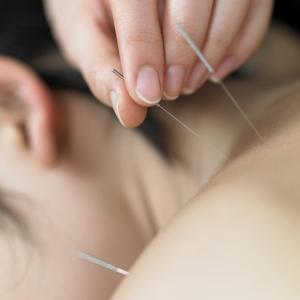 acupunctuurschouder